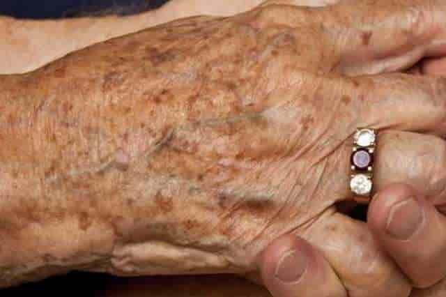 Black spots on skin - age spots