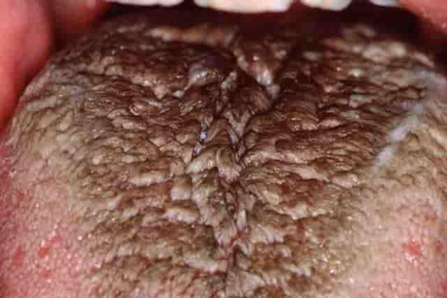 Hairy Tongue Treatcure