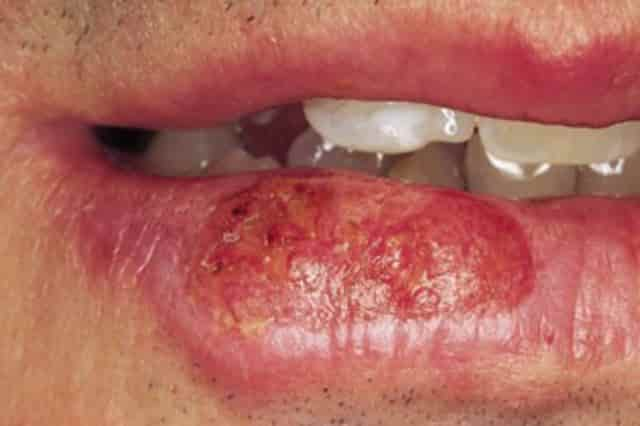 Dry patches on lip - cancer