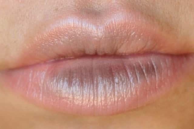 Dry patches on lip - dark